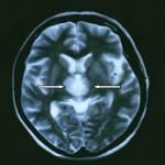 МРТ головного мозга на томографе 0,2 Тл
